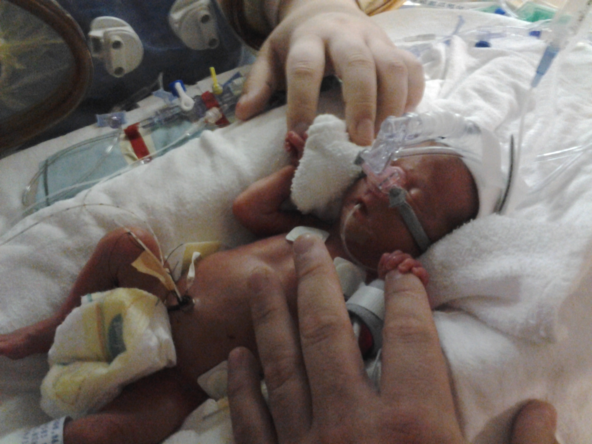 Jessica's Story: Why Donor Breast Milk Matters, and How you can Donate
